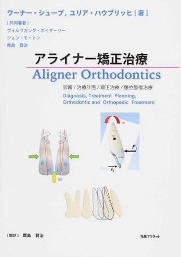 Aligner orthodontic treatment